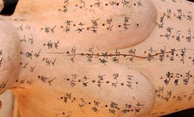 Akupunktur ve Kilo Kaybı Dr.Mehmet Öz
